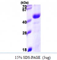 AR09925PU-N - DNAJB11