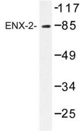 AP06748PU-N - EZH1
