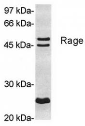 SP5151P - RAGE