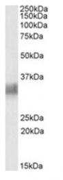 AP23736PU-N - CD317 / BST2