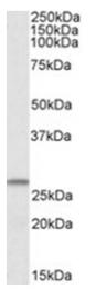AP23720PU-N - CHCHD3
