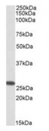 AP23721PU-N - CHCHD3