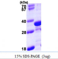 AR09932PU-L - Tropomyosin-4 (TPM4)
