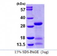 AR09940PU-L - IPP isomerase 2 / IDI2
