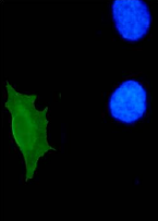 AM26115PU-N - HPV11 E7 Protein