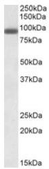 AP23704PU-N - PRDM1 / BLIMP1