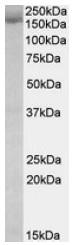 AP23705PU-N - STAG2 / Stromal antigen 2