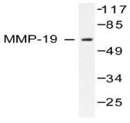 AP06230PU-N - MMP-19