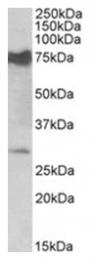 AP31405PU-N - NMNAT3