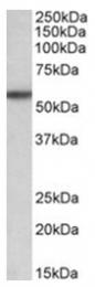 AP31410PU-N - TGFBR1 / ALK-5