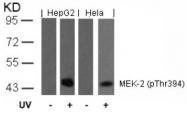 AP02310PU-N - MAPKK 2