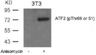 AP02331PU-N - ATF2