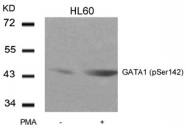 AP02341PU-S - GATA1