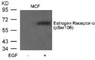 AP02369PU-S - Estrogen receptor alpha