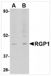 AP26328PU-N - RGP1