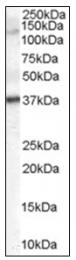 AP16469PU-N - GALR3