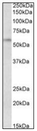 AP16667PU-N - DGAT1