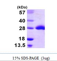 AR09976PU-N - Methionine Sulfoxide Reductase A / MSRA
