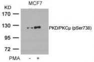 AP02376PU-S - PRKD1