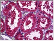 AM31698PU-N - Osteopontin / SPP1