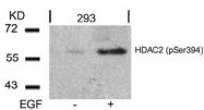 AP08014PU-N - HDAC2