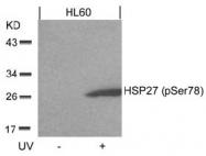 AP02500PU-N - HSPB1 / HSP27