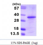 AR09990PU-L - CDCA8 / Borealin
