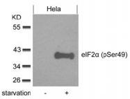 AP08033PU-N - EIF2A / EIF2S1