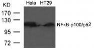 AP02558PU-S - NFKB2 / NF-kappa-B p100/p52