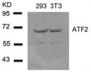 AP02571PU-S - ATF2