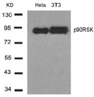 AP02663PU-S - RPS6KA1