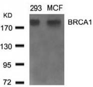 AP09500PU-S - BRCA1 / RNF53