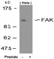 AP02673PU-S - FAK1 / PTK2