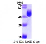 AR39017PU-L - L-asparaginase 1