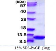 AR39032PU-L - S100A6 / Calcyclin