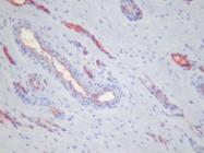 AM26134PU-N - Platelets