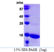 AR39039PU-N - ATP5D