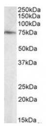 AP15960PU-N - ELMO3
