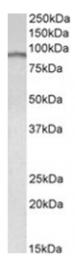 AP09455PU-N - E2F7