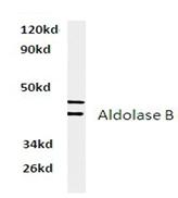 AP01402PU-N - Aldolase B / ALDOB