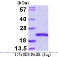 AR39041PU-L - Sorting nexin-3 (SNX3)