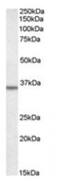 AP15967PU-T - Annexin A2 / ANXA2
