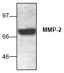 AP26359PU-N - MMP-2