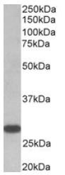 AP31576PU-N - Thyrotropin receptor / TSHR