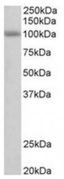 AP31573PU-N - SIDT1