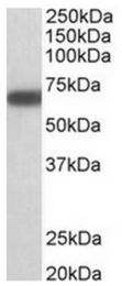 AP31572PU-N - GAD1 / GAD67