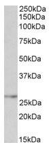 AP31567PU-N - NMNAT3
