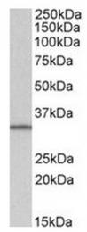 AP31560PU-N - SLC9A3R2 / NHERF2