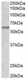 AP31557PU-N - ACVRL1 / ALK1