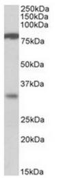 AP31555PU-N - CLCA1